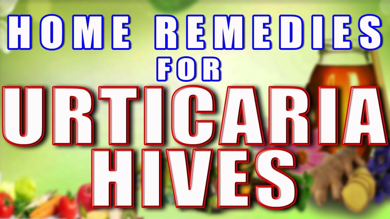 Home Remedy For Urticaria II पित्त से होने वाली खुजली के घरेलु उपचार II