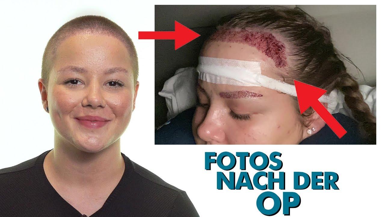 Bei eine männern was deutschland haartransplantation kostet in Haartransplantation