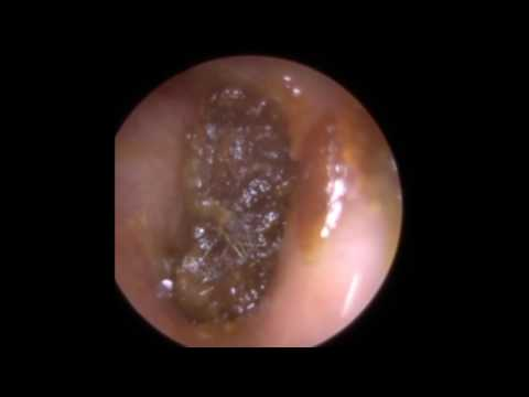 Ear Wax Removal from Narrow Ear including off the Hammer Bone - Mr Neel Raithatha (THC)