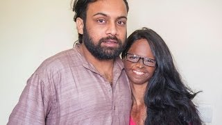 Acid Attack Victim Finds Love With Fellow Campaigner