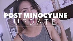 Post Minocycline Acne | Skin Update | nicolevlogs