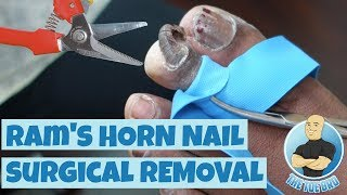 PERMANENT REMOVAL OF A DEFORMED NAIL (RAM