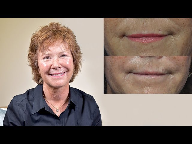 Mimi's Microneedling Transformation Story