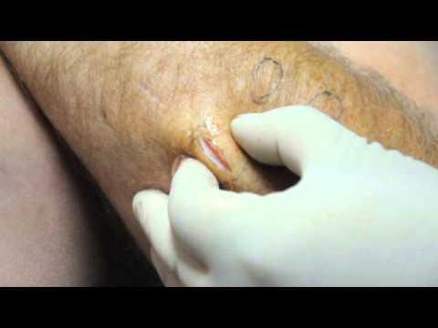 How Do You Get Rid Of Lipomas Naturally