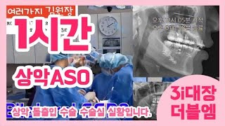 턱수술하는 김원장 - 상악 ASO