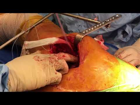 Surgery For Lateral Hip Pain (Trochanteric Bursitis and Abductor Tendon Repair)