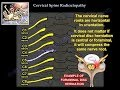 Cervical Radiculopathy - Everything You Need To Know - Dr. Nabil Ebraheim