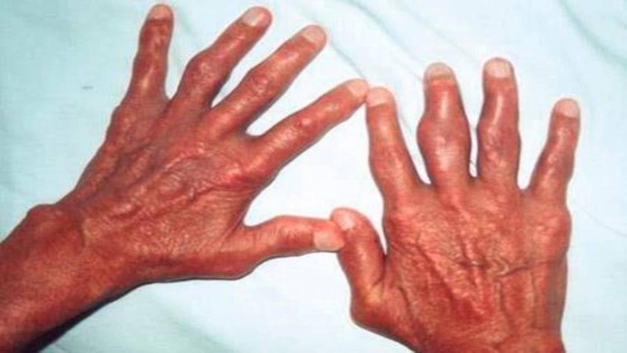 Пиогенен артрит, неуточнен МКБ M00.9