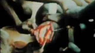 A Hole In The Head DVD: African Trepanation video clip