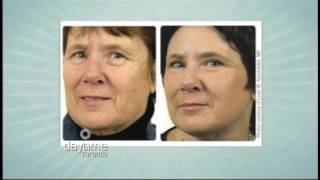 Daytime Toronto - Dr. Sean Rice - Laser Treatments and Chemical Peels Thumbnail