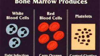 Aplastic Anemia