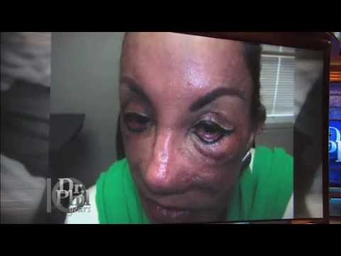 Repairing Botched Cosmetic Surgeries Youtube