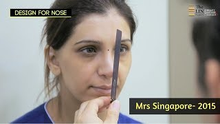 Plastic Surgery Journey of Sheetal with The Line Plastic Surgery Clinic!