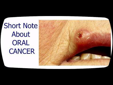 guide-to-oral-cancer