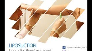 Liposuction ile yağ nasıl alınır?