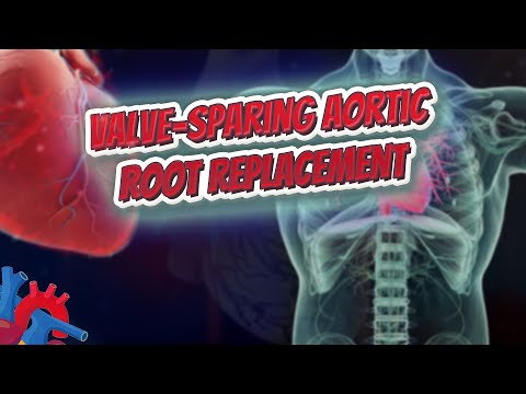 Valve sparing aortic root replacement