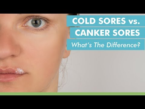 Difference Between Cold Sores and Canker Sores | Samsung