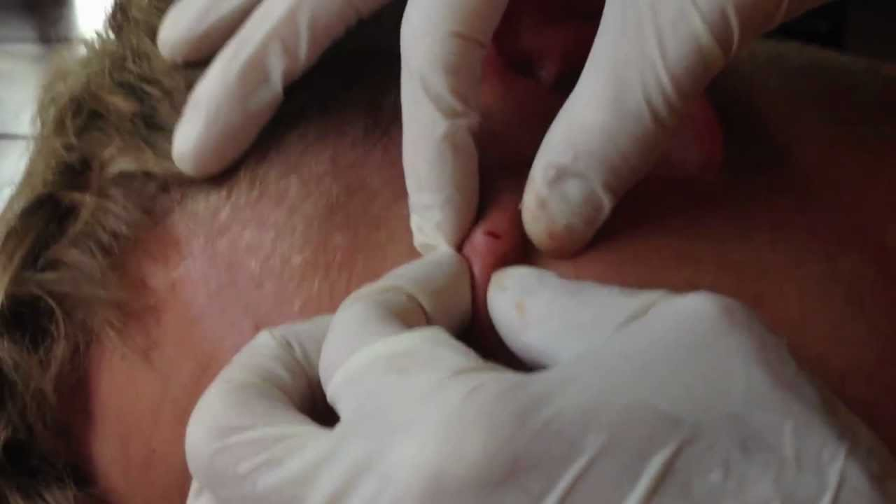 pus coming from vagina