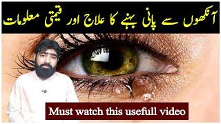 urdu में पानी वाली आँखों का इलाज | अँखो सेइ पानि आटा हा | आंखो सेई पनी बेहनी का इलज | नज़र