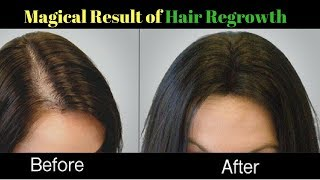 My magical Hair Regrowth Challenge| stop hair fall and regrow fast