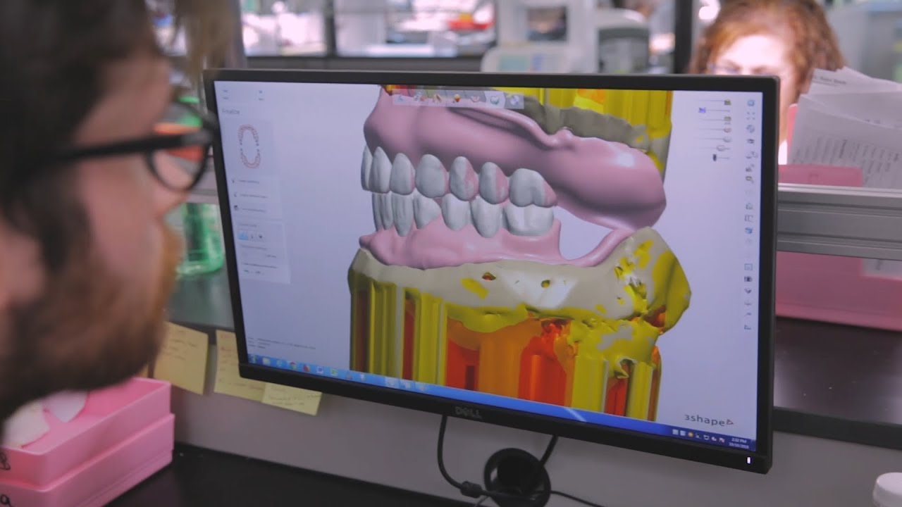 ROE Dental Laboratory  Hear why Digital Dentures is such a hot topic