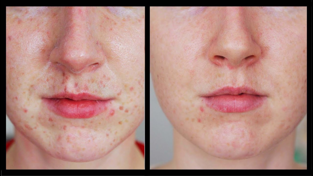 Best Laser Freckles