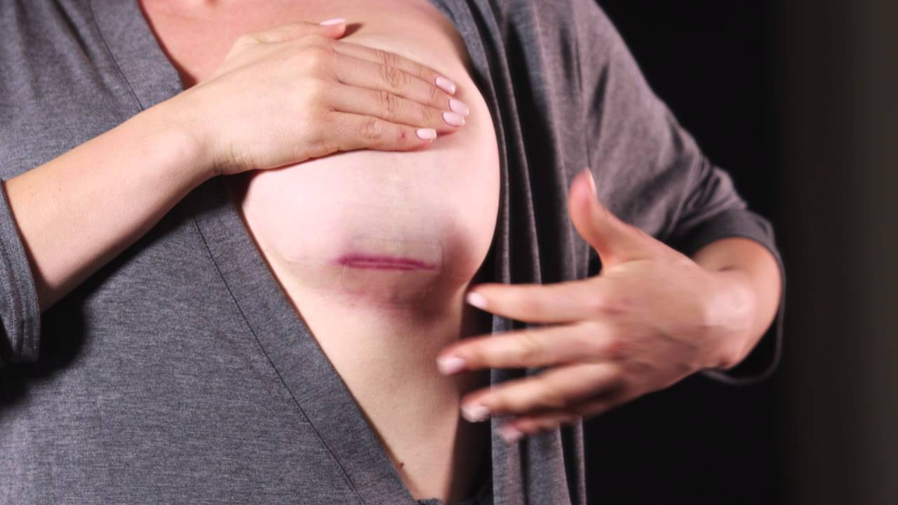 Embrace Active Scar Defense Application Breast-4497