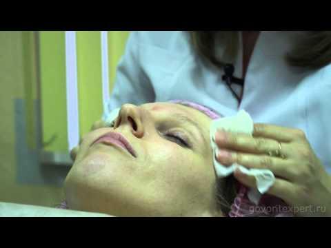 Акне – лечение акне: мой личный опыт