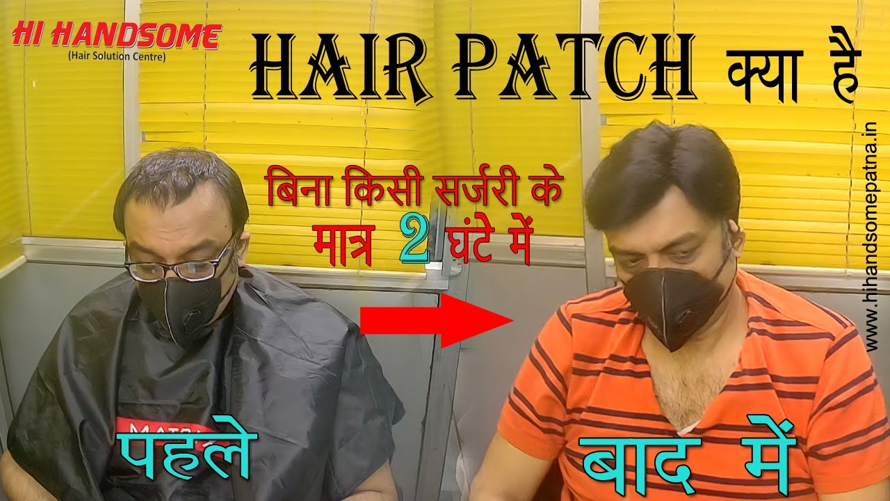 Hair Patch | Hair Bounding | Hair Transplant | Non Surgical Hair Transplant | Wig Service