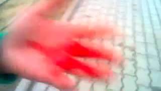 из за арабки руку порезала