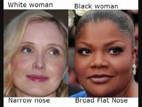 African Or Black Features Such As A Wide Nose Shape