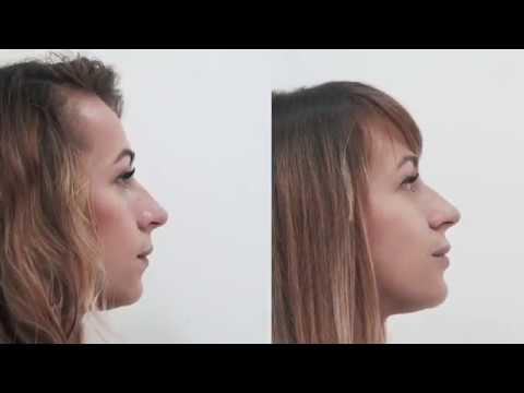 Коррекция подбородка и увеличение губ