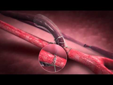 Laminate Medical Technologies - VasQ Device