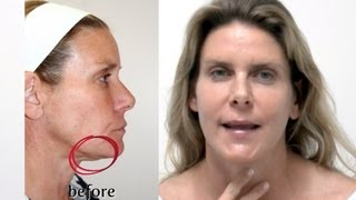 Y LIFT ® 2013 - Debra's Testimonial | Instant, Non Surgical Facelift