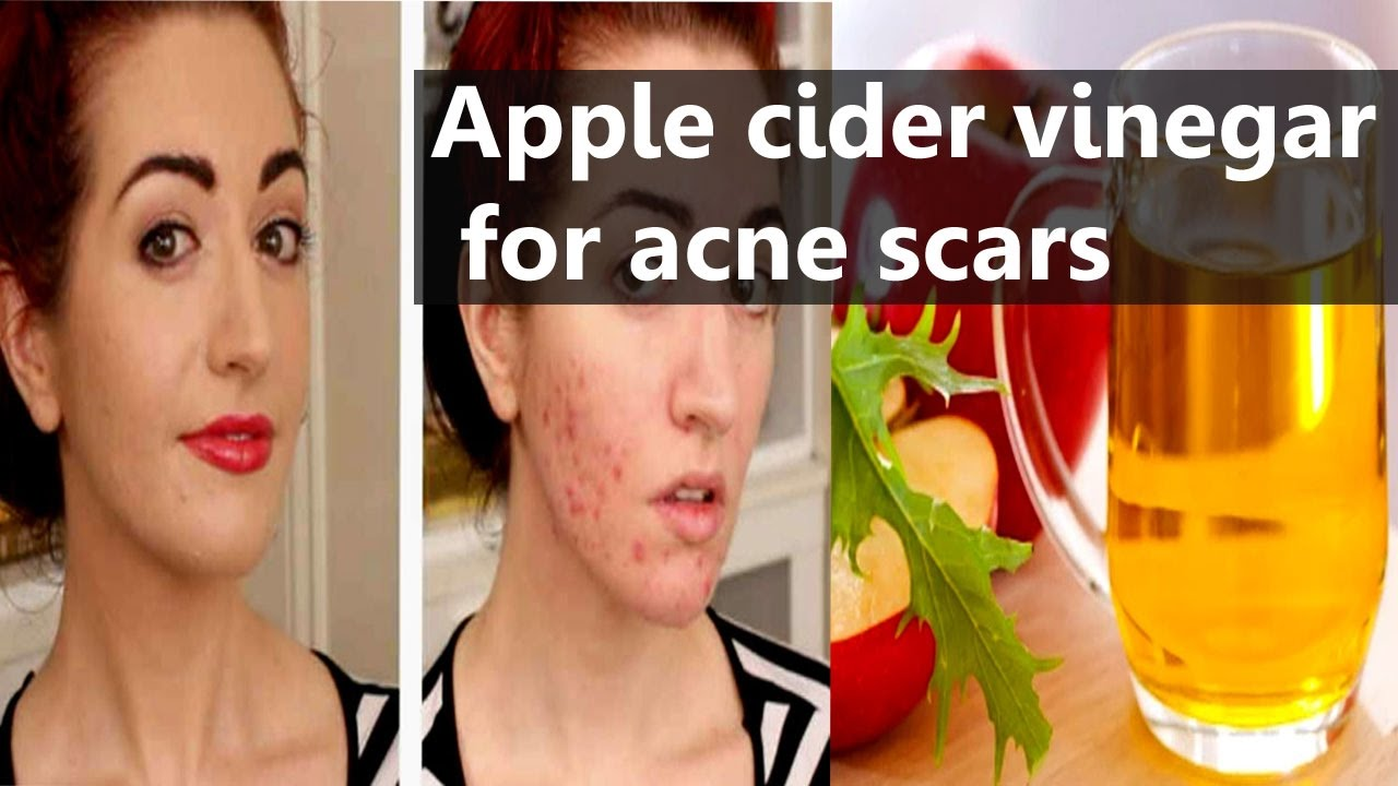 Does Vinegar Get Rid Of Acne