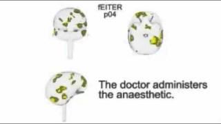 Мозг при анестезии