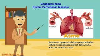 OBAT EMFISEMA HERBAL AMPUH DE NATURE - Cara Mengatasi Penyakit Emfisema Secara Alami dan Aman Produk.