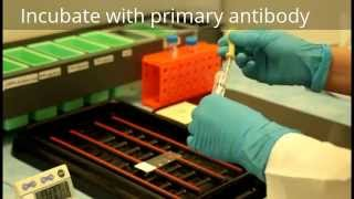 Immunohistochemistry - Procedure