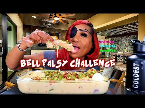 Bell's Palsy Awareness Challenge, Deshelled Alfredo King Crab Boil