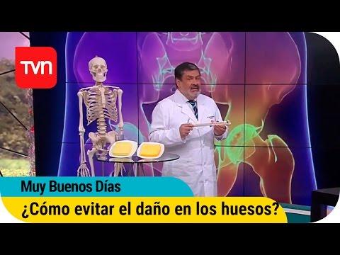 Muy buenos días | ¿Cómo evitar el daño en los huesos?