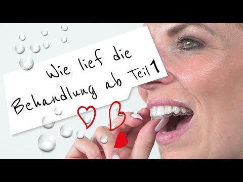 Die Behandlung mit dem CA® CLEAR ALIGNER Teil 1 - Start to love your smile