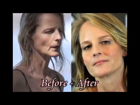 Helen Hunt plastic surgery before and after photos