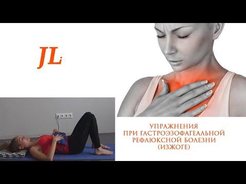 Упражнения при гастроэзофагеальой рефлюксной болезни (ГЭРБ). Изжога.