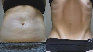 Вакуум живота. До и После. Результат за 5 месяцев.