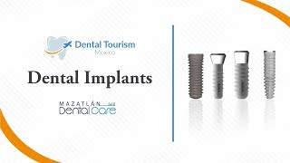 Dental Implants Mazatlan - Dental Tourism Mexico