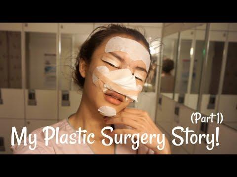 MY PLASTIC SURGERY STORY (PART 1) | BEAUTIQUE KOREA | BANOBAGI CLINIC | BAHASA INDONESIA