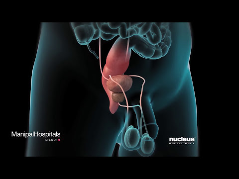 Robotic Prostatectomy | Prostate Cancer | Oncologist | Manipal Hospitals