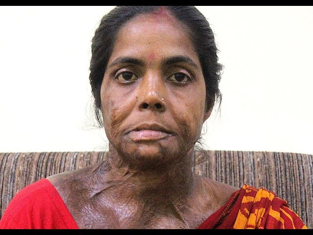Acid Attack Survivor - Moyna Pramanik