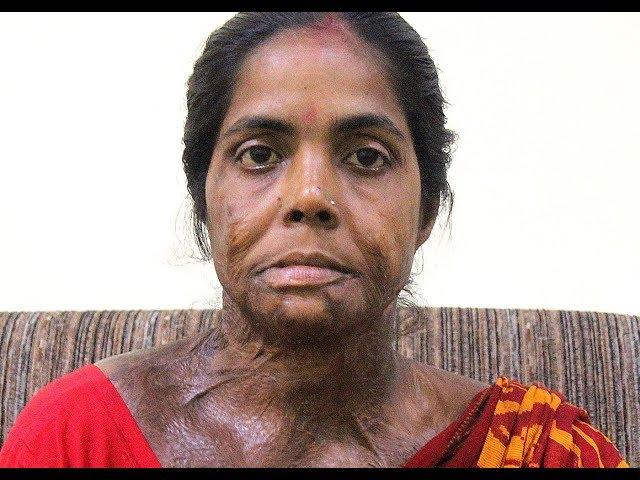 Acid Attack Survivor - Moyna Pramanik
