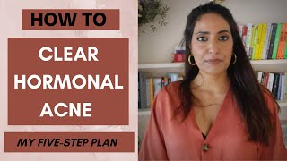 How to Clear Hormonal Acne | My Five Step Plan to Clear Your Skin | Kesar Andrews